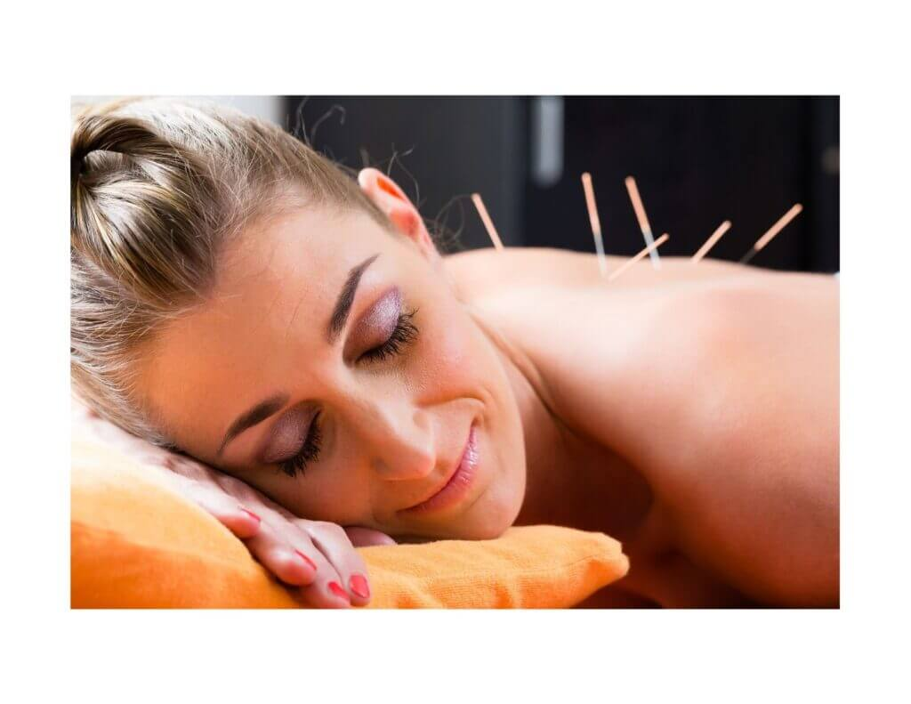 Acupuncture for well-being